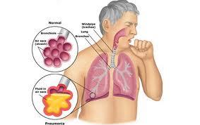 cara menyembuhkan penyakit tbc